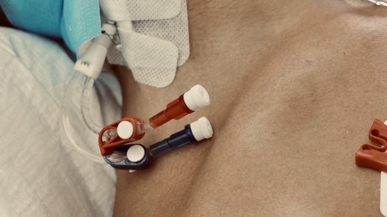 Pielęgniarka oddziałowa po rewalidacji, odcinkowa po pielęgniarstwie.